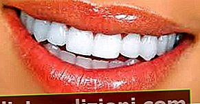 Definiția Teeth